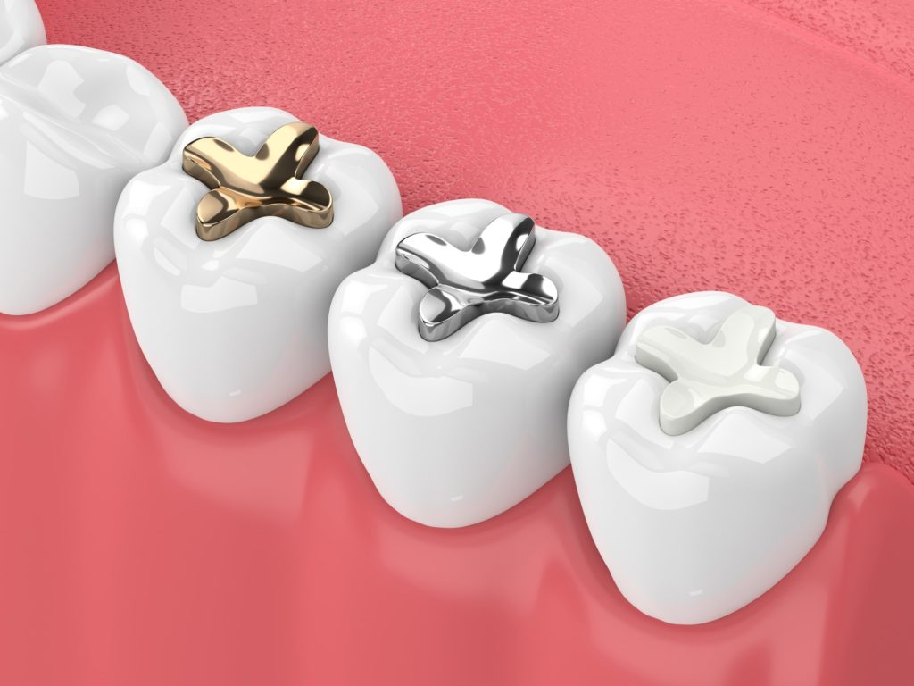 Illustration of a row of teeth showing different types of dental fillings