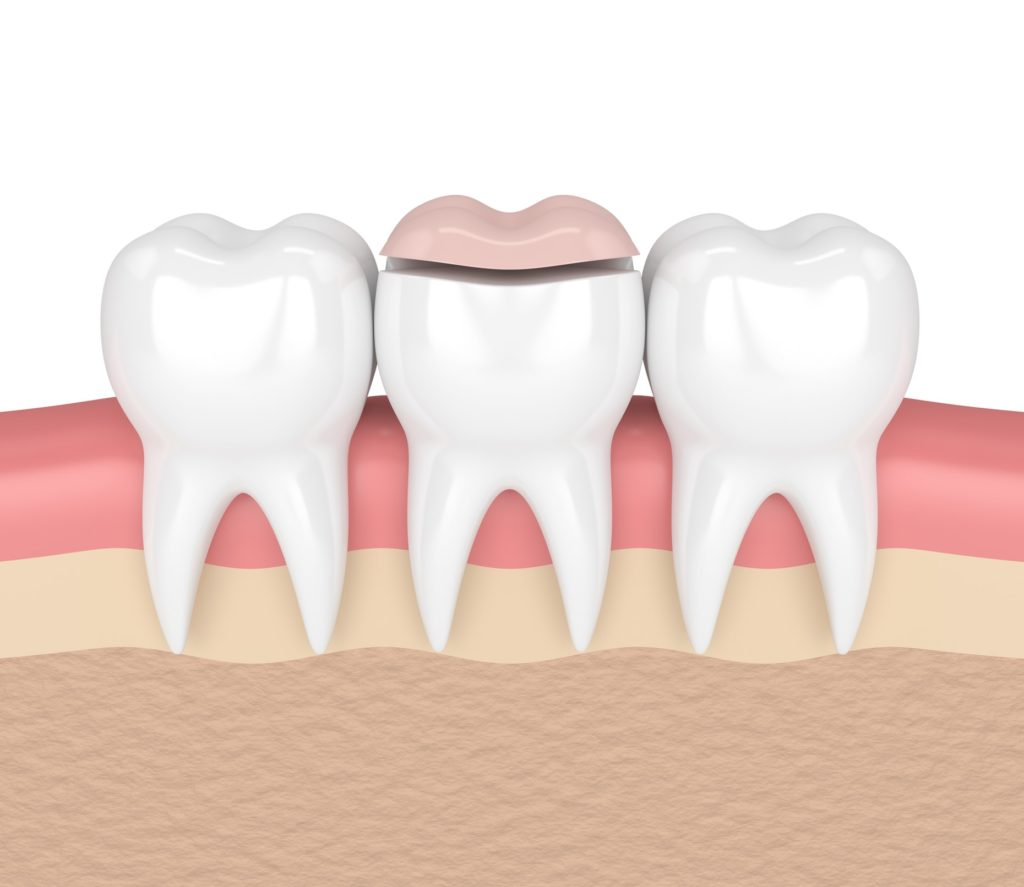 Illustration of a row of three teeth with a dental inlay over the middle tooth